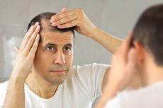 5 Hal yang Bisa Jadi Penyebab Rambut Rontok