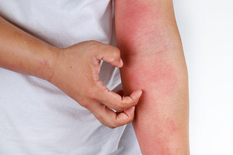 Ilustrasi dermatitis