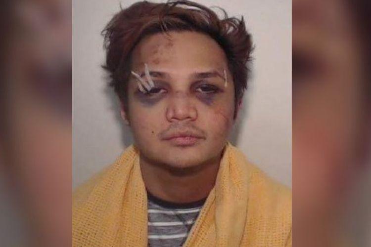 Kepolisian Manchester Raya merilis foto Reynhard Sinaga saat dia ditangkap dalam kondisi babak belur pada 2017 lalu.