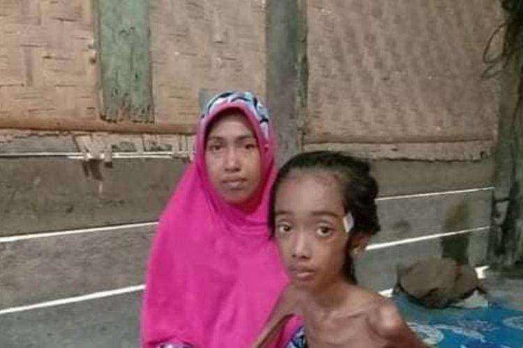 Putri Aura (11) warga Desa Meunasah Trieng, Kecamatan Lhoksukon, Kabupaten Aceh Utara, Kamis (1/4/2021)