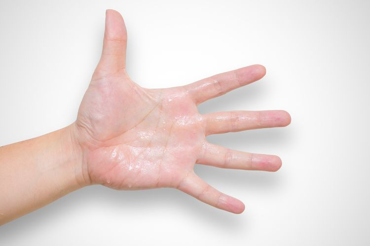 Ilustrasi tangan berkeringat