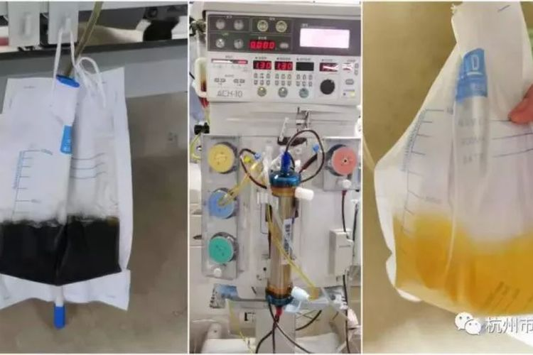 Warna urin Yu (63) pria asal China timur berubah menjadi hitam seperti kecap (kiri) setelah digigit ular beludak yang akan dia jadikan wine. Yu kemudian menjalani perawatan di Rumah Sakit Tradisional Hangzhou pada Kamis (27/5/2021) untuk mengembalikan warna air kencingnya seperti semula (kanan).