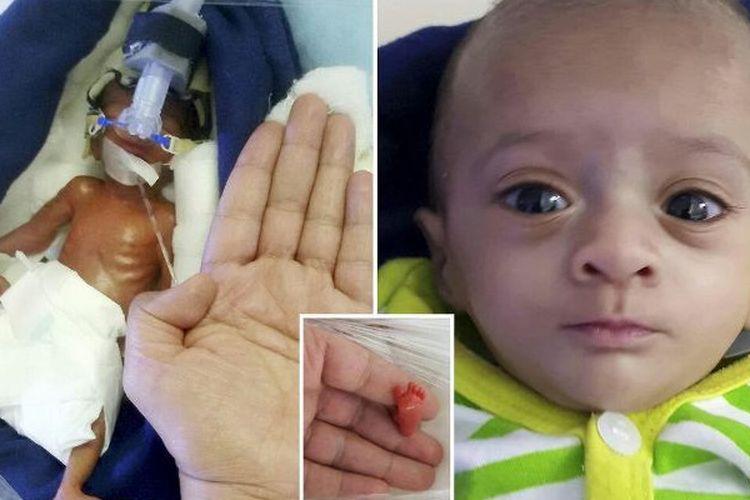 Bayi bernama Manushi. (Daily Mail)