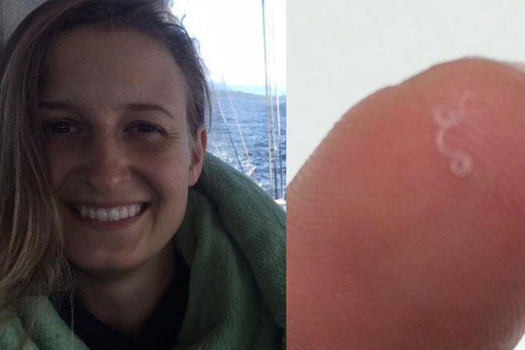 Abby Beckley (kiri) dan cacing yang ditemukan di matanya (kanan)