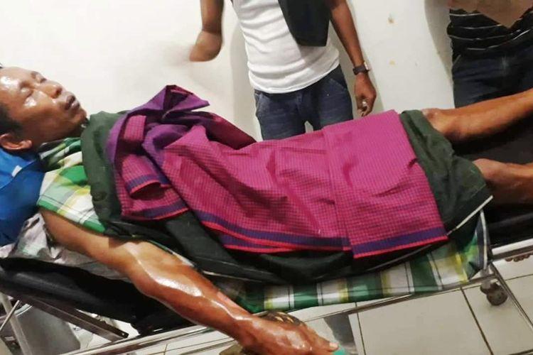 Salahseorang warga di Cianjur, Jawa Barat yang menjadi korban tabung elpiji 3 kilogram yang bocor dengan luka bakar di bagian lengan.