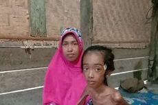 Viral Foto Bocah 11 Tahun Tinggal Tulang dan Kulit di Aceh Utara, Derita Tipes Akut