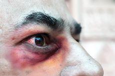 2 Penyebab Tingginya Penyakit Jamur Hitam di India Menurut Ahli