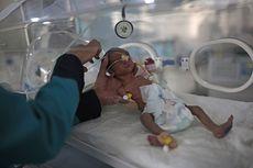 Lebih dari 2 Juta Anak-anak di Yaman Diperkirakan Akan Kekurangan Gizi Parah pada 2021