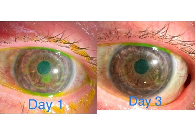 Dokter Mata, Tommy Korn di Amerika Serikat menggunakan kamera iPhone 13 Pro Max untuk mengecek kondisi mata pasiennya