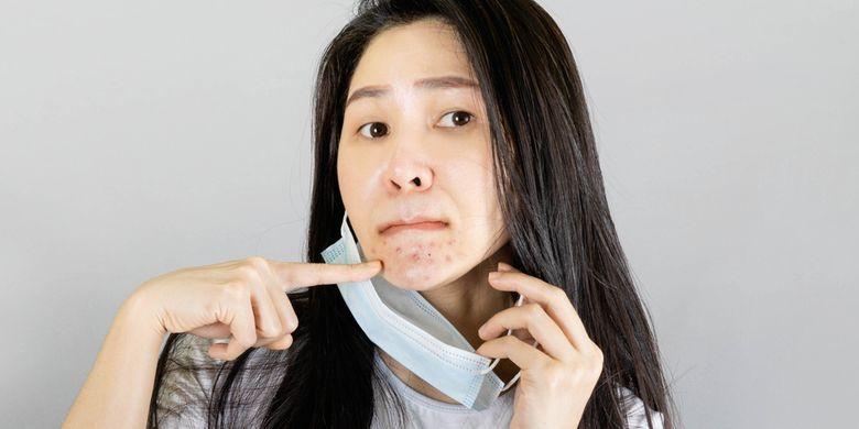 Ilustrasi acne mask, jerawatan di area yang tertutup masker.