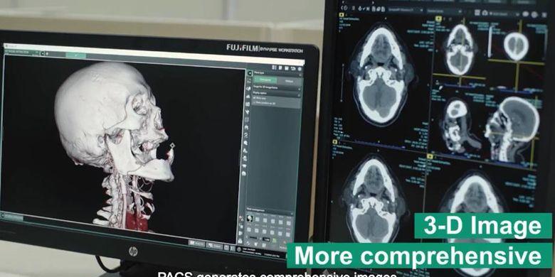 Ilustrasi pemeriksaan CT-Scan otak pasien.