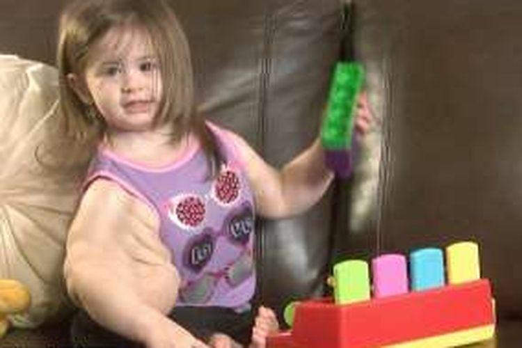 Madison Gatlin yang mengalami kelainan mutasi genetik.