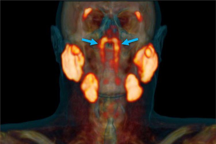 Ilmuwan menemukan organ yang tersembunyi di dalam tenggorokan manusia. Sepasang kelenjar baru ini dinamakan kelenjar ludah tubarial oleh para ilmuwan Belanda.