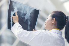 Memahami Penyebab, Gejala, hingga Jenis-Jenis Kanker Tulang