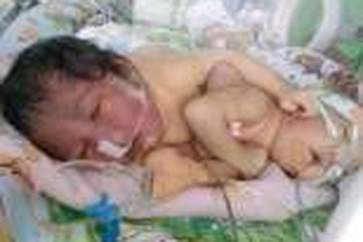 Bayi kembar dempet perut masih dirawat di RSUD Kota Tasikmalaya, Kamis (24/12/2016).
