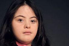 Gadis Penyandang Down Syndrome Ini Jadi Model Majalah Vogue