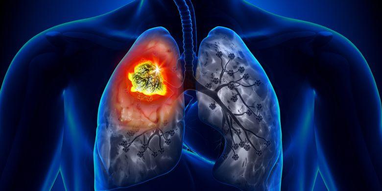 Ilustrasi kanker paru