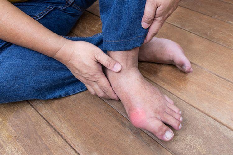 Gejala asam urat terkadang mirip dengan beberapa penyakit lain.