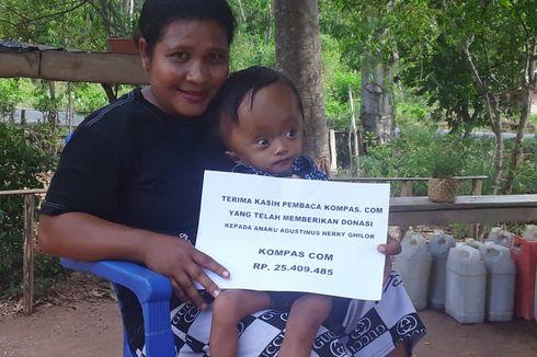 Bayi Penderita Hidrosefalus di NTT Dapat Bantuan dari Pembaca Kompas.com