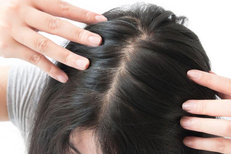 Ilustrasi rambut tipis