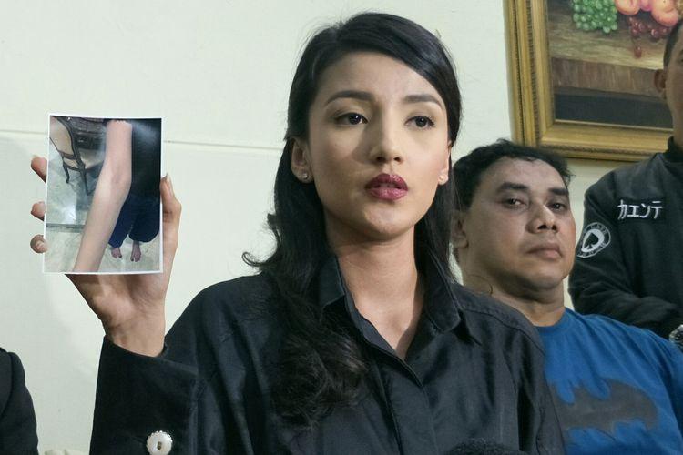 Artis peran Tsania Marwa saat menunjukkan luka di lengannya dalam jumpa pers di kawasan Gambir, Jakarta Pusat, Selasa (19/3/2019).