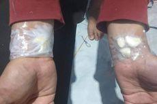 Kata Dokter soal Viral Tempel Bawang Putih di Tangan Bisa Atasi Sakit Gigi