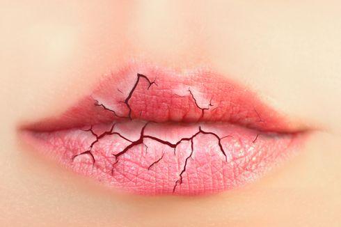 5 Cara Atasi Bibir Kering dan Pecah-pecah