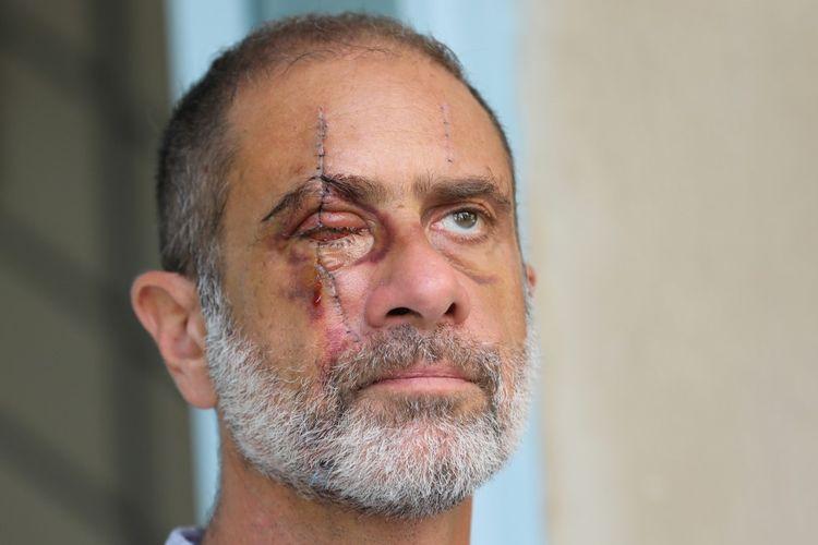 Rony Mecattaf, psikoterapis berusia 59 tahun yang kehilangan mata kanannya dalam ledakan dahsyat 4 Agustus, di klinik psikoterapi di lingkungan Ashrafieh, Beirut, pada 15 Agustus 2020
