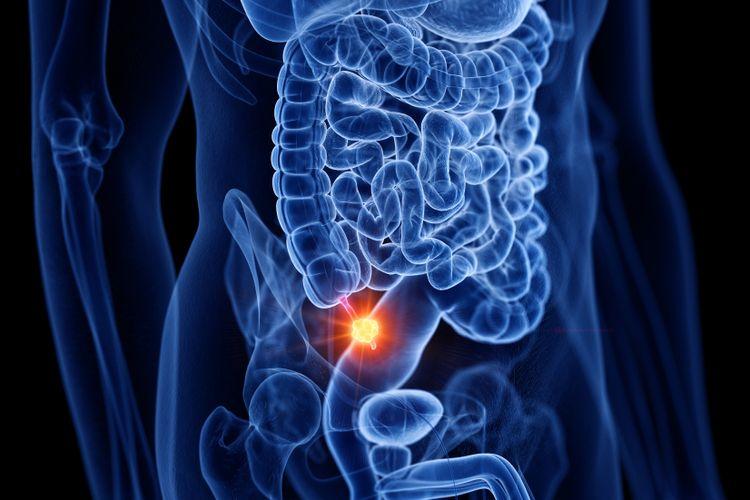 Ilustrasi organ apendiks adalah organ penyebab usus buntu. Salah satu organ vestisial atau organ manusia yang tidak diperlukan oleh tubuh.