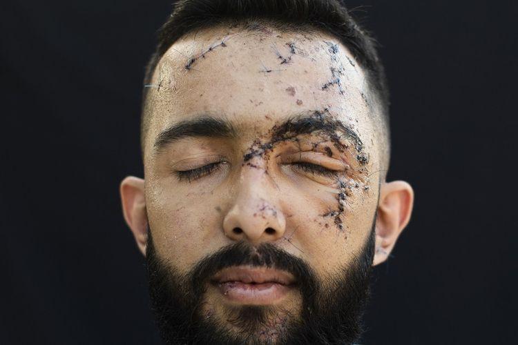 Foto bertanggal 14 Agustus 2020 ini menunjukkan potret seorang warga Beirut, Hussein Haidar (27) yang merupakan satu dari ribuan korban ledakan masif di pelabuhan Beirut, Lebanon. Haidar terluka ketika berada di kantornya saat ledakan masif terjadi pada 4 Agustus 2020.