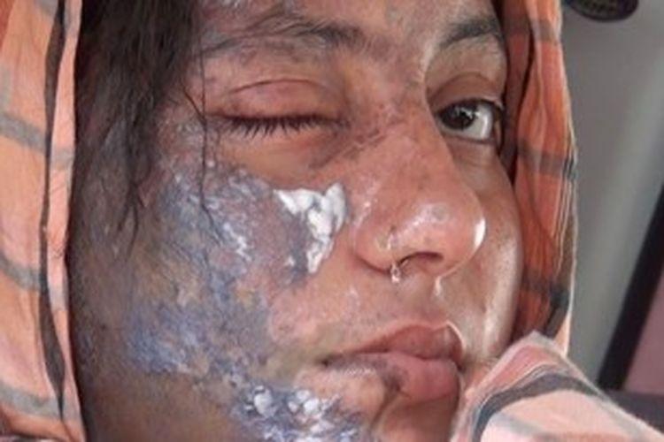 Foto yang menunjukkan bekas air keras membakar wajah aktris Pakisan, Bushra Waiz (berusia 18 tahun), tidak lama sebelum dia dibawa ke Rumah Sakit Lady Reading di Peshawar, Sabtu (22/6).