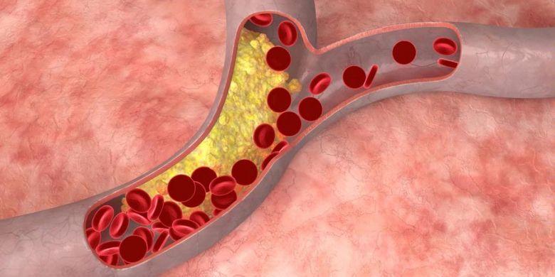 Ilustrasi pembuluh darah
