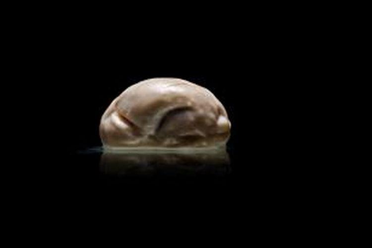 Otak yang menjadi salah satu koleksi University of Texas, Austin, lain daripada yang lain. Permukaannya halus, tak memiliki lipatan.