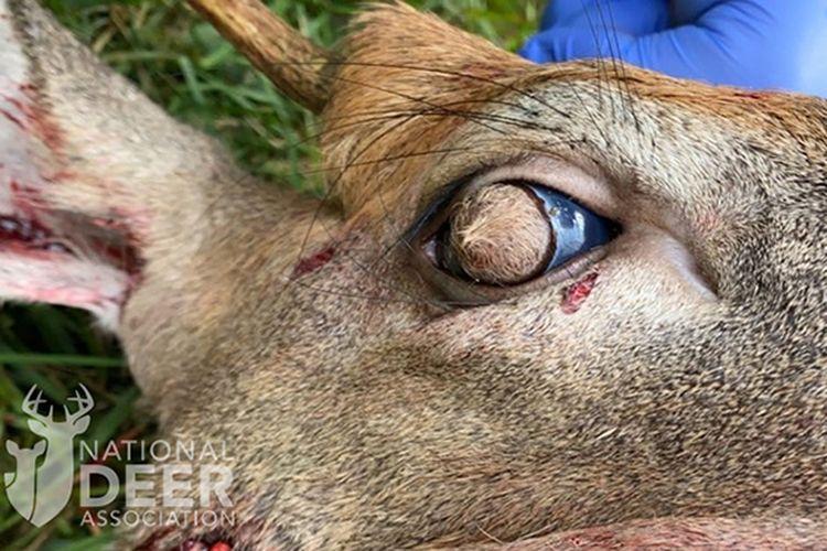 Bola mata rusa ini ditumbuhi rambut yang menutupi korneanya. Menurut ahli, kasus langka ini disebabkan oleh dermoid kornea yang muncul sejak masih di rahim.