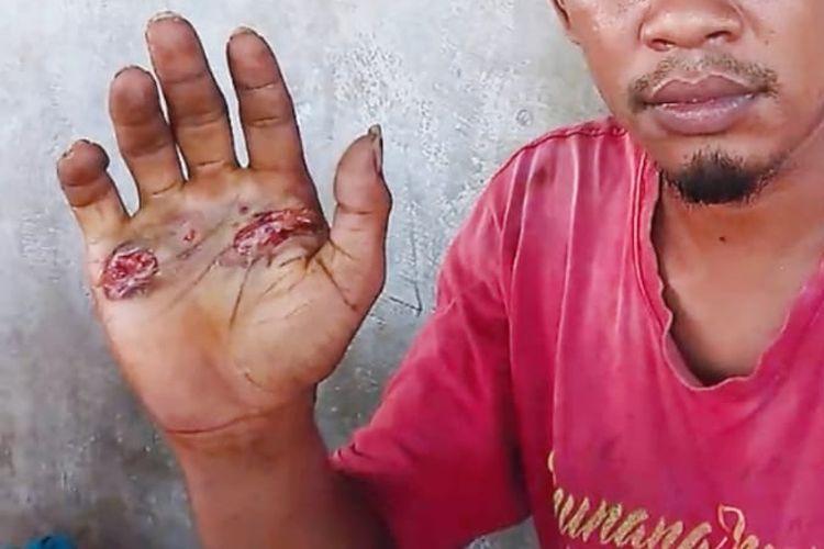 MA (29), warga Desa Baomekot, Kecamatan Hewokloang, Kabupaten Sikka, NTT, dihukum pegang besi panas untuk membuktikan benar atau salah, Sabtu (14/11/2020).