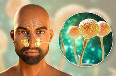 Jamur Hitam Mukormikosis Berbahaya dan Mematikan, Bagaimana Perawatannya?