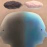 Mengenal Bipolar dan Penyebabnya
