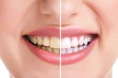 6 Bahan Alami untuk Memutihkan Gigi dan Cara Penggunaannya
