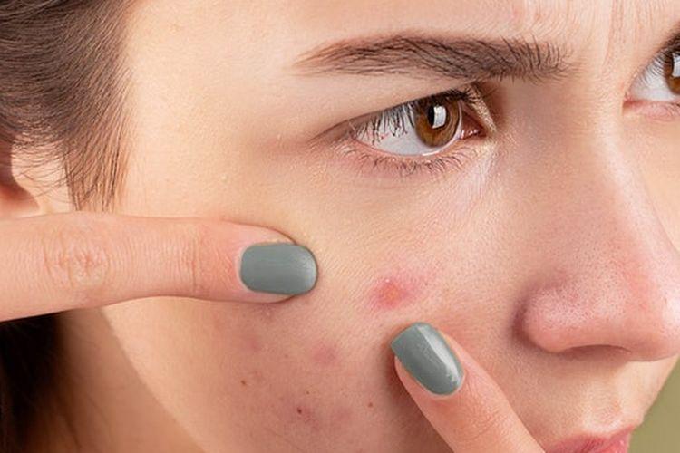 Spot treatment dalam urutan skincare pagi digunakan secara khusus untuk mengatasi masalah kulit tertentu, seperti jerawat.