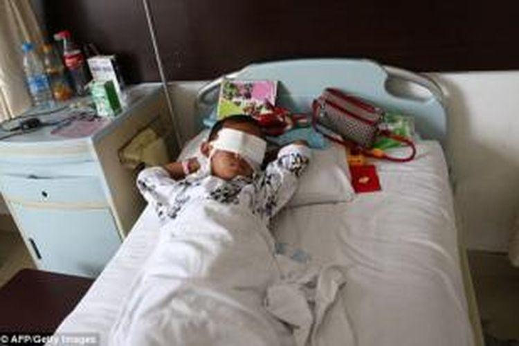Binbin (6), tergeletak di sebuah rumah sakit di Provinsi Shanxi, China setelah kedua bola matanya dicungkil para penculik yang diduga kuat adalah anggota jaringan penyelundup organ tubuh manusia.