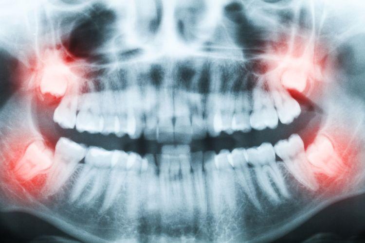 Ilustrasi gigi bungsu. Gigi bungsu adalah salah satu organ vestisial atau organ yang tidak diperlukan dalam tubuh manusia.