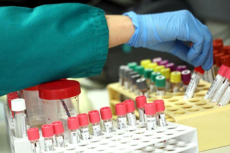 Seorang peneliti yang bekerja di laboratorium Klinis Mikrobiologi, Virologi dan Diagnostik Darurat dari rumah sakit Luigi Sacco di Milan, Italia, 30 Januari 2020 untuk meneliti virus corona.  EPA-EFE/MATTEO BAZZI