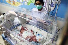 Dempet di Bagian Bawah, Bayi Kembar Siam Ini Punya Satu Anus dan Satu Kelamin