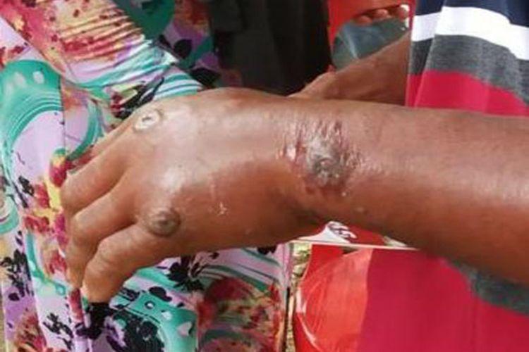 Penampakan tangan salah seorang warga yang terpapar penyakit antraks. Sebanyak 6 orang Desa Dainaa Kabupaten Gorontalo positif mengidap penyakit antraks