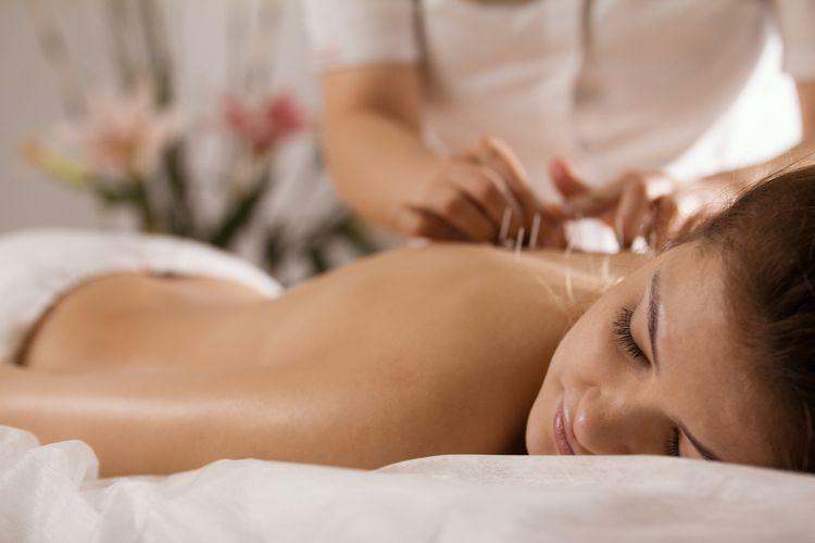 Ilustrasi akupunktur