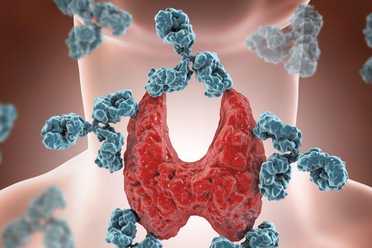 Ilustrasi penyakit autoimun tiroid.