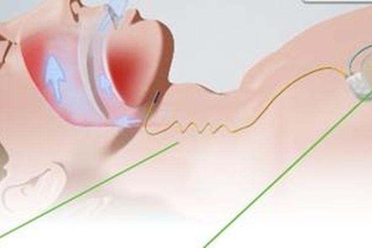 Ilustarasi alat Hypoglossal-Nerve Stimulation