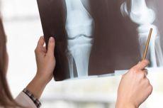 Benarkah Konsumsi Suplemen Kalsium Tak Turunkan Risiko Patah Tulang?