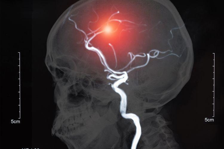 Ilustrasi aneurisma pada otak