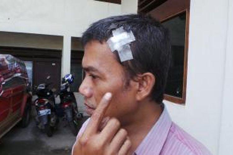 Santonius Hendri Gibson (47), seorang guru di Depok, menunjukkan luka yang dialaminya setelah ia memergoki pencuri sepeda motor di sebuah indekos di Jalan Permata Nomor 27, RT 06/RW 05, Kebon Pala, Kecamatan Makassar, Jakarta Timur, Rabu (17/7/2013) dini hari
